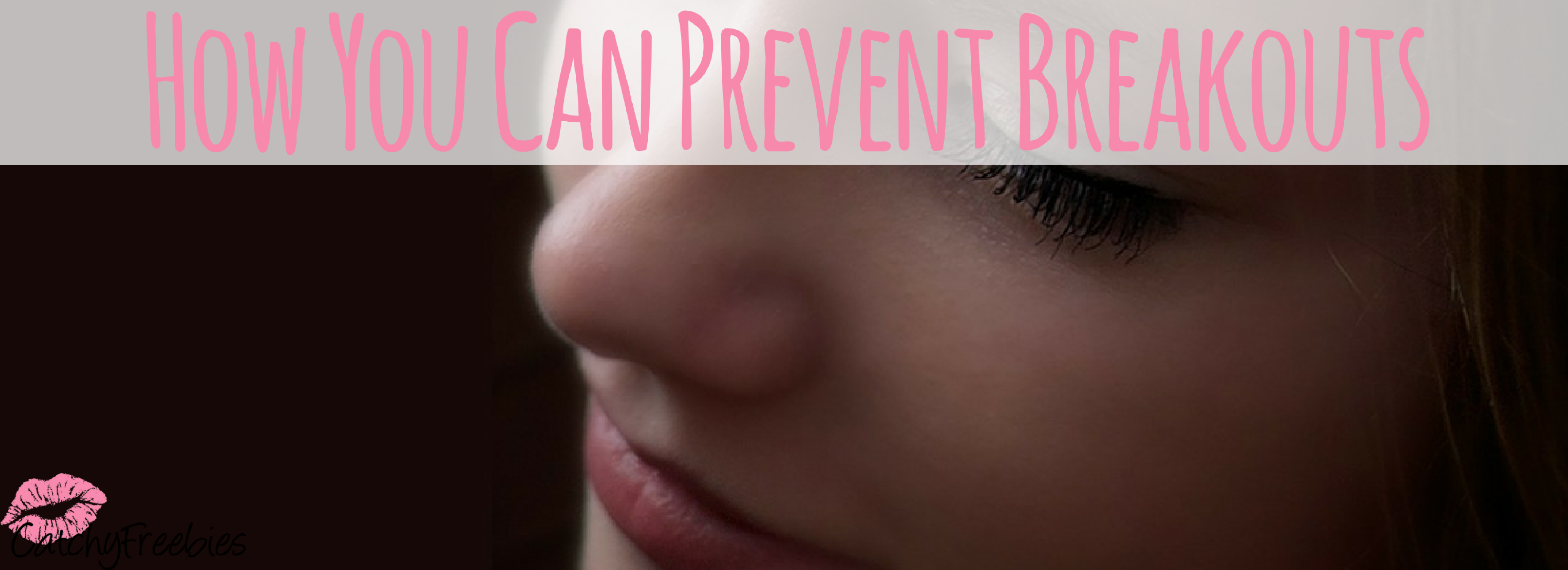 How You Can Prevent Breakouts